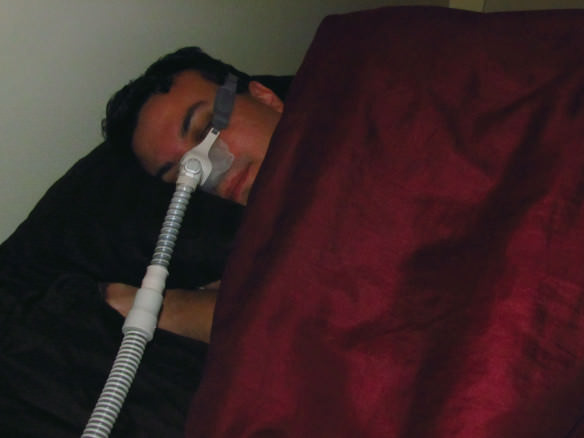 Sleep Apnea - CPAP