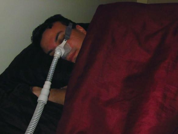 Sleep Apnea - CPAP